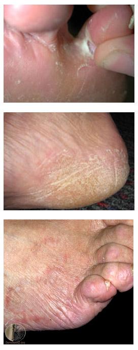 skininfection