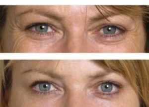 Wrinkle Reducing Injections