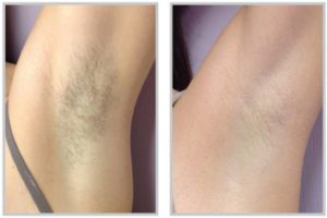Intense Pulsed Light for Hair Removal