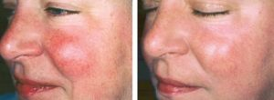 Intense Pulsed Light for Skin Rejuvenation