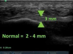 Diagnostic ultrasound imaging